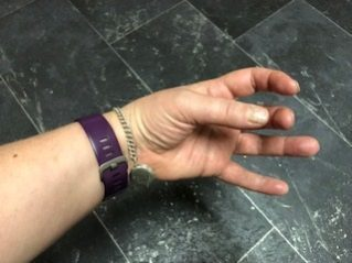 Left handed weakness after stroke